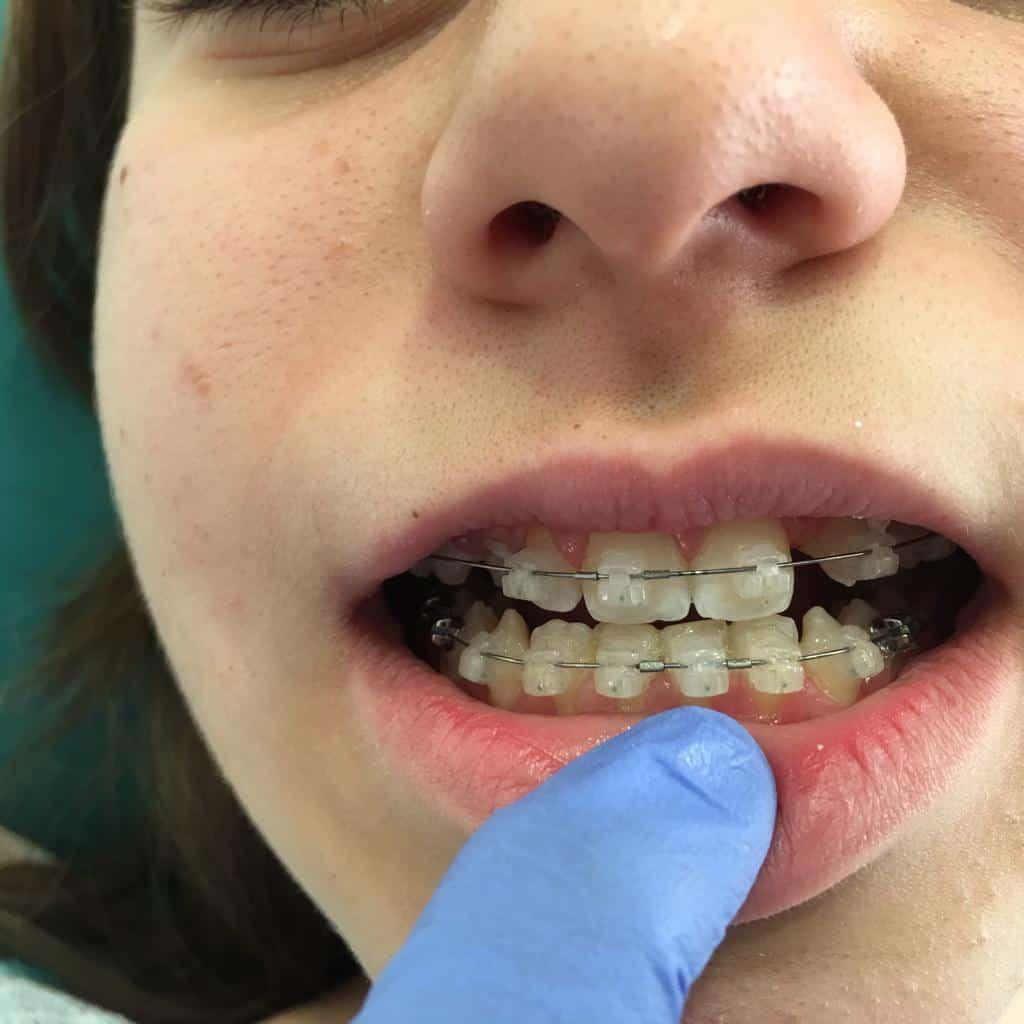 """ד""""ר נטליה נבייב - יישור שיניים ברמת גן"""
