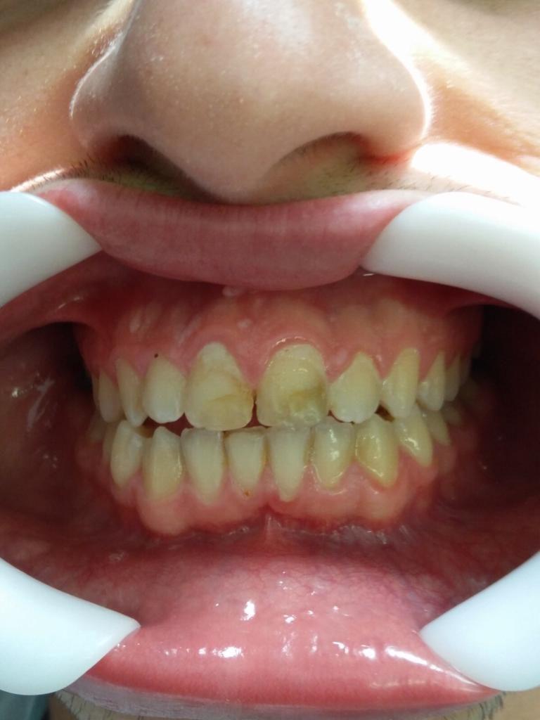מור שיניים