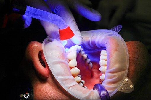 רופאי השיניים הכי טובים בעיר רמת גן - המומלצים